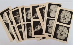 `Мозг и его деятельность` В.М. Бехтерев. Москва, Государственное издательство, 1928 г.